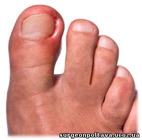 Крема от грибка ногтей отзывы